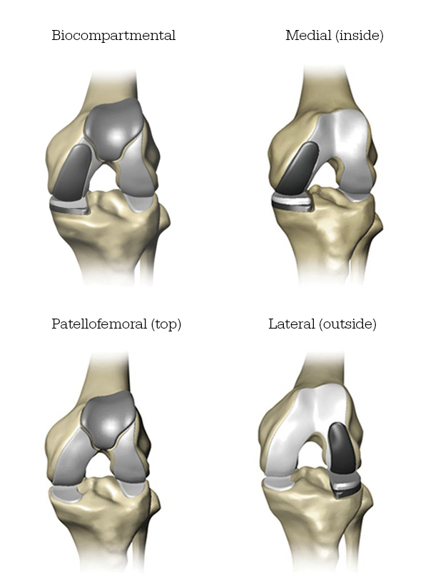Mako Robotic-Arm Assisted partial knee replacement